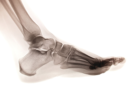 Ankle Sprains Physical Therapy NYC