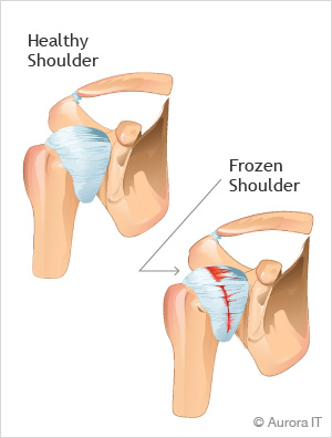 Frozen Shoulder Treatment New York