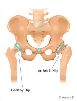 NYC hip arthritis | arthritis of the hip | hip pain