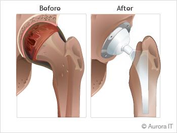 Manhattan | Hip Surgery Recovery | Hip Surgery Physical