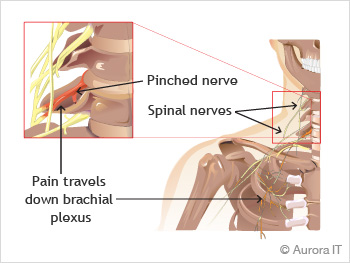 Pinched cervical nerve treatment in NYC