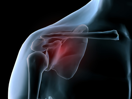 Post-Surgery Shoulder Rehabilitation Manhattan