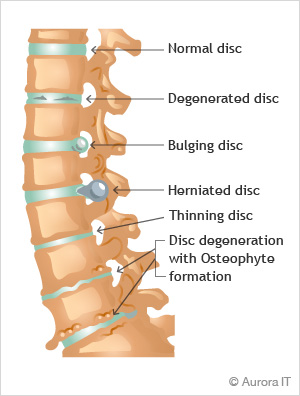 Degenerative Joint / Disc Disease treatment manhattan